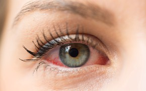 Picture woman, conjunctivitis, irritated eyes