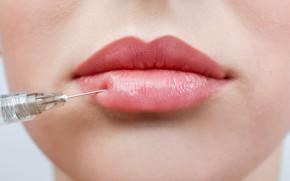 Picture lips, female, botox