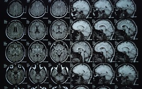 Picture sake, brain, X-rays